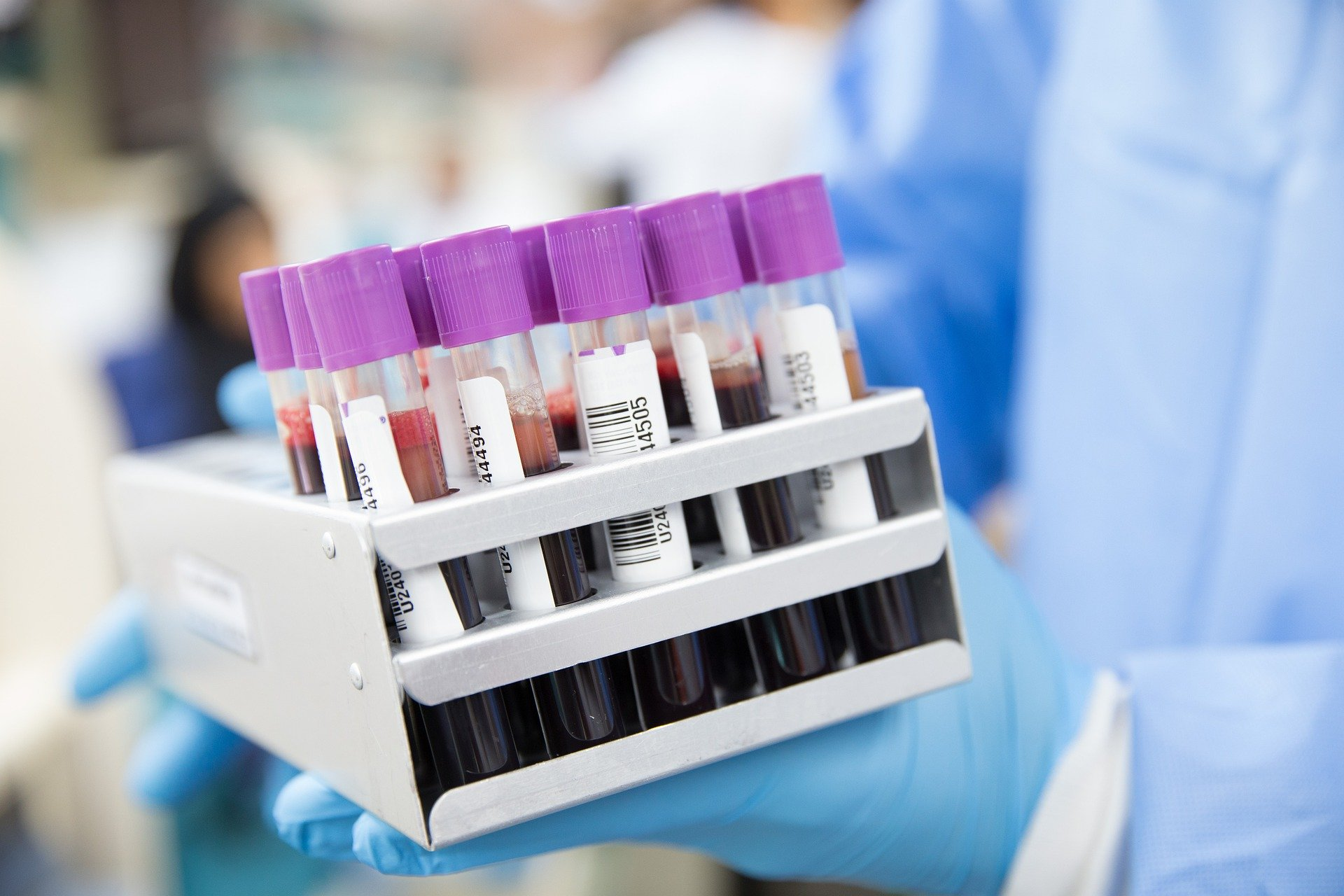 It's bloody fantastic: New blood tests for Alzheimer's disease give us a window into the ageing brain